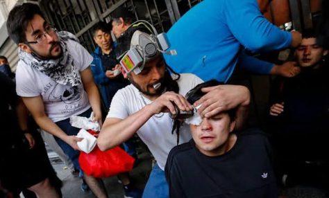 ddhh-heridos-oculares-768x464.jpg